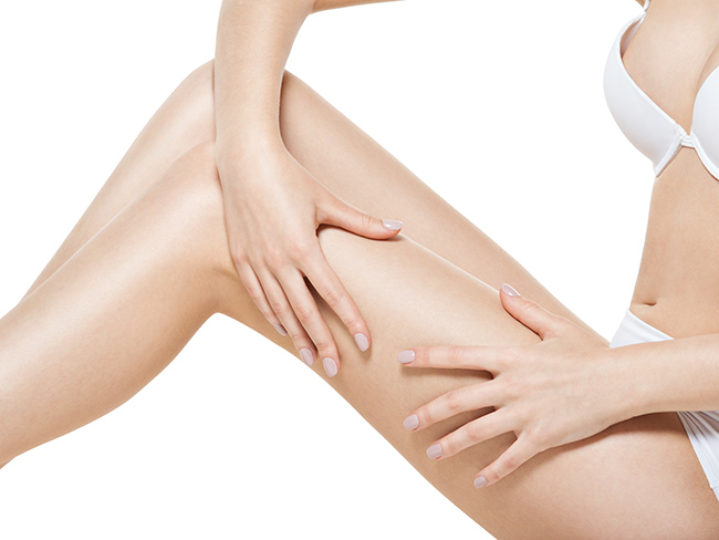 Woman squeezes cellulite skin on her legs on white background